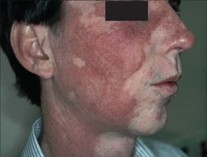 VITILIGO: A REVIEW OF SOME FACTS LESSER KNOWN ABOUT DEPIGMENTATION ...