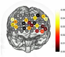 Reduced prefrontal activation during verbal fluency task in