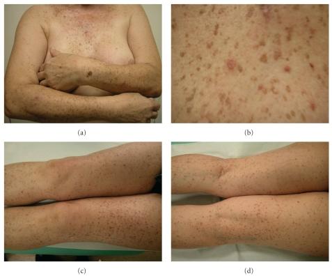 Dowling Degos Disease