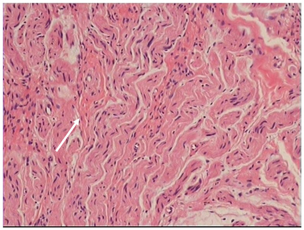 Traumatic neuroma in a patient with breast cancer after mastectomy: a ...