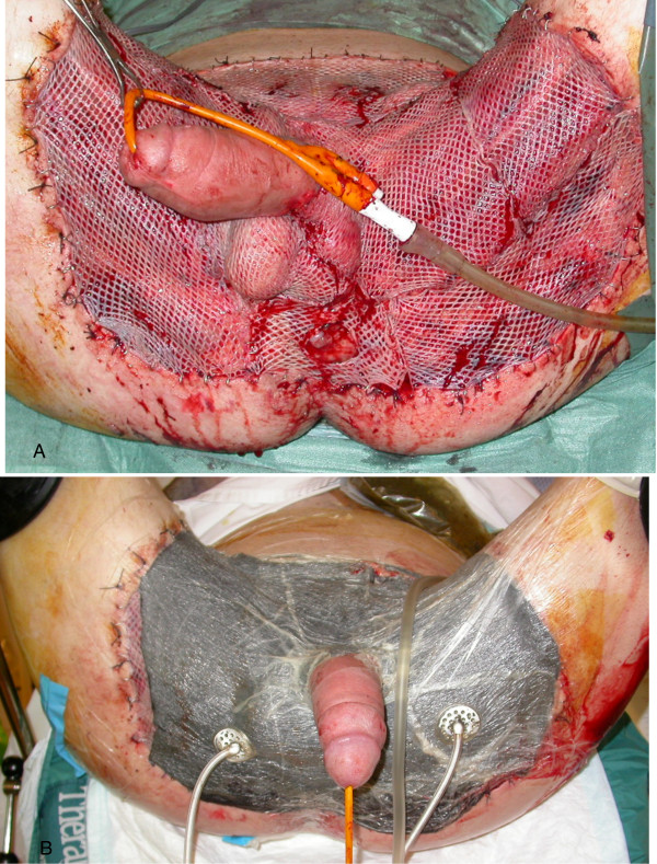 Skin Grafting - procedure, recovery, blood, pain ...