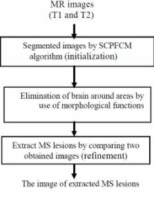 Segmentation of Multiple Sclerosis Lesions in Brain MR