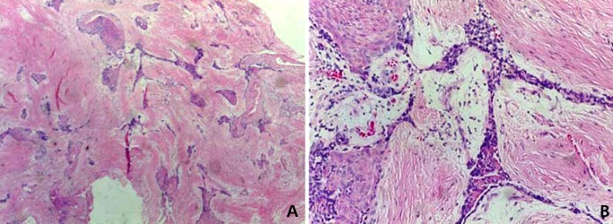 A repeatedly recurrent desmoplastic ameloblastoma after ...