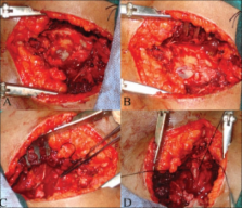 tarlov cyst: case report and review of literature – scienceopen, Skeleton