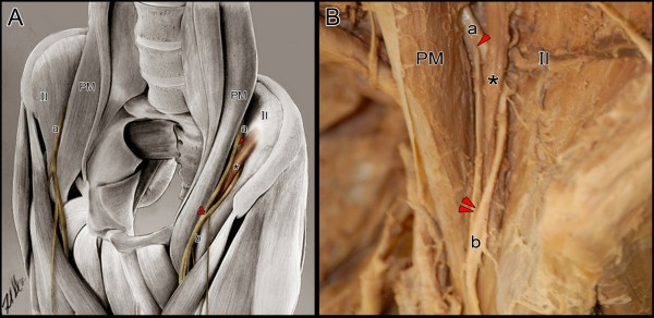 co-presentation of unilateral femoral and bilateral sciatic nerve, Muscles
